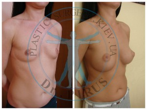 Пластика груди (маммопластика)