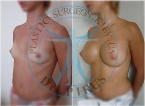Увеличение груди Natrelle MF 335сс