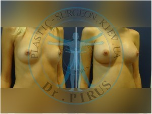 Увеличение груди Natrelle/anat/280 МM