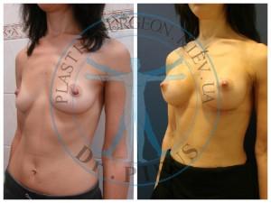 Увеличение груди +уменьшение сосков