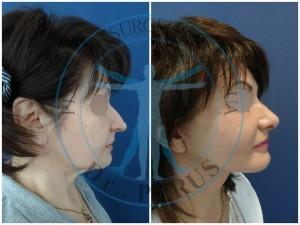 подтяжка лица, ринопластика, липофилинг средней зоны