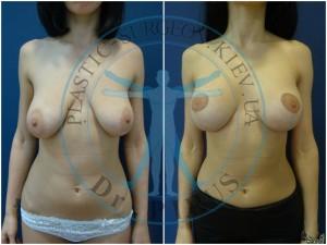 одномоментная вертикальная мастопексия