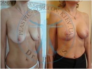 одномоментная периареолярная мастопексия