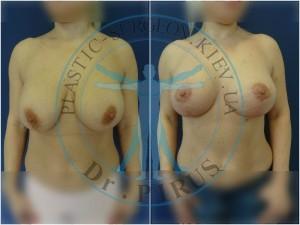 замена имплантов круг. низкопроф. 250сс на каплевид. высокопроф. 295сс + вертикальная мастопексия