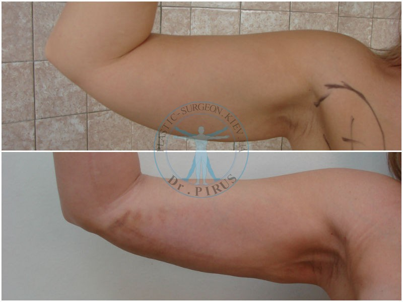 Липосакция рук до и после