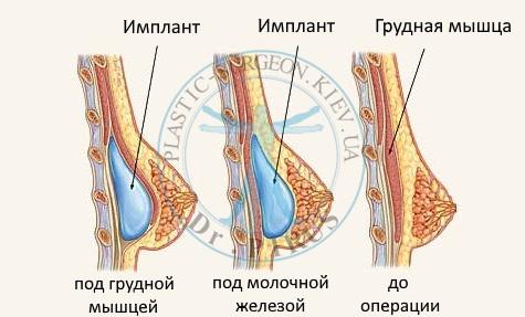 Способы расположения имплантата