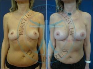 Анатомические импланты Arion 345cc