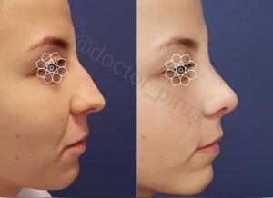 пластика кончика и спинки носа