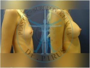 Увеличение груди Киев