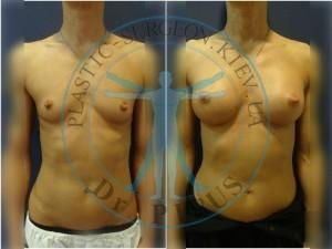 Увеличение груди MX 290сс экстравысокая проэкция, протезирование в двух плоскостях