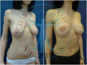 одномоментная вертикальная мастопексия и эндопротезирование круглыми имплантами 250сс