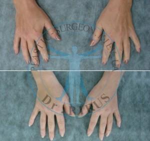 липофилинг кисти рук