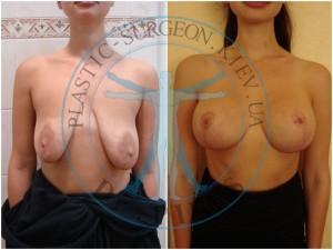одномоментная мастопексия и эндопротезирование круглыми имплантами