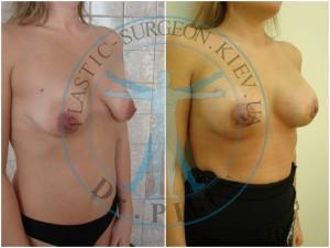 мастопексия и эндопротезирование