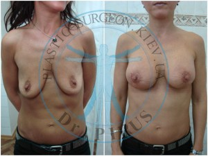 мастопексия фото