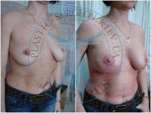 периареолярная мастопексия и эндопротезирование фото