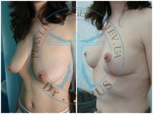 подтяжка груди вертикальная (мастопексия)