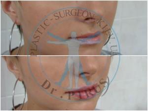 пластика губ гиалуроновой кислотой