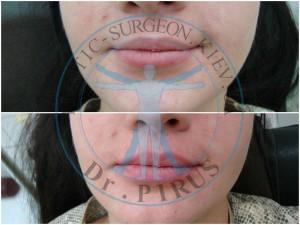 наполнение губ гиалуроновой кислотой