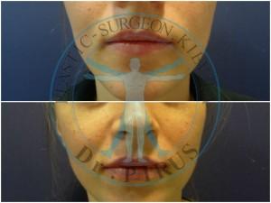 корекция губ филлером гиалуроновой кислоты