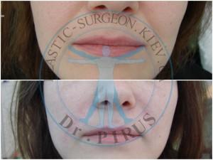 носо-губных морщин гиалуроновой кислотой