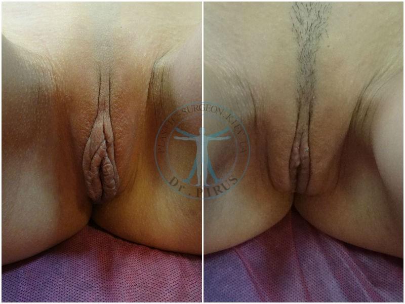 Интимная пластика малых половых губ плюсы и минусы — 10