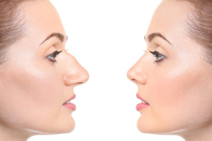 исправление носа
